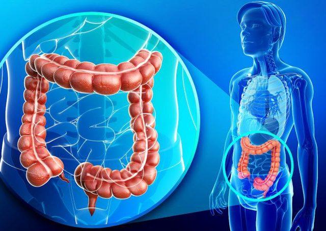 Câncer colorretal tem 90% de chance de cura se descoberto no início, diz médico