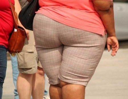Estudo aponta relação entre casos graves de covid-19 e obesidade
