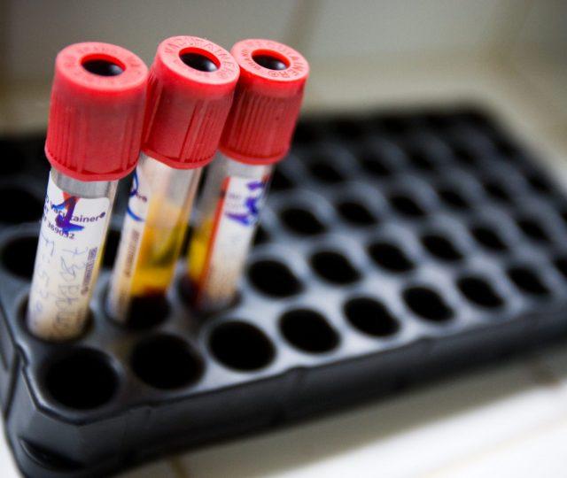 Pesquisadores brasileiros podem ter descoberto cura da AIDS