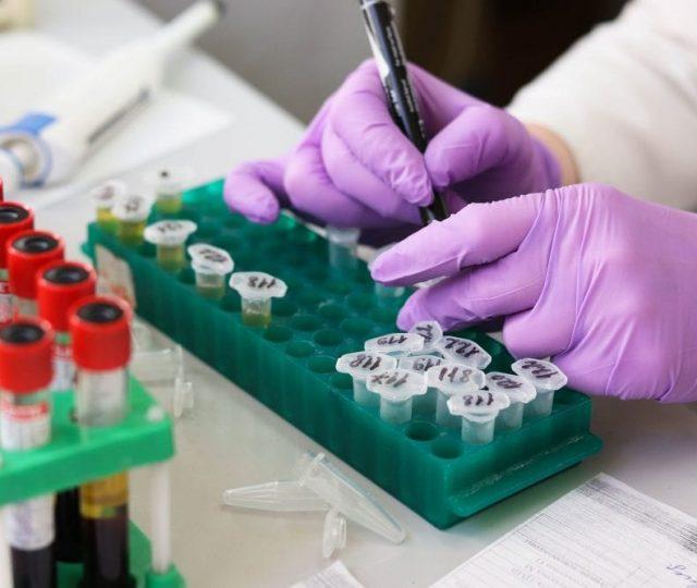 Estudo britânico sugere que infecção por Covid-19 garante imunidade por 5 meses