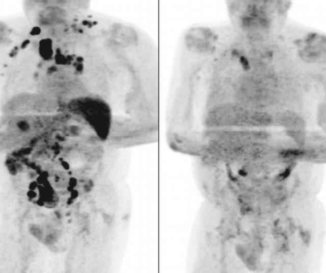 Paciente com câncer em estágio avançado tem redução de tumores após contrair Covid-19