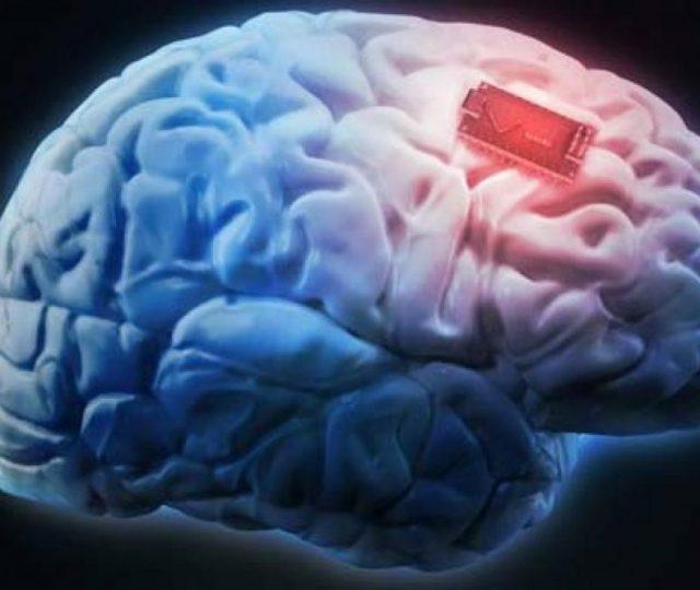 Implante cerebral para epilepsia refratária ajuda a prevenir sintomas, incluindo convulsões